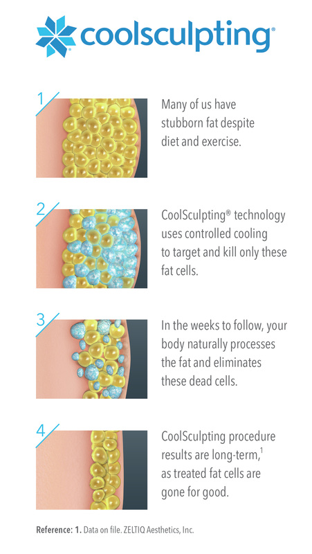 CoolSculpting at Santa Fe,NM