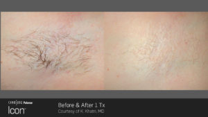 Hair-Removal-Before-_-After-4