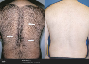Hair-Removal-Before-_-After-Photo-1