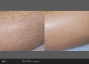Hair-Removal-Before-_-After-Photo-2