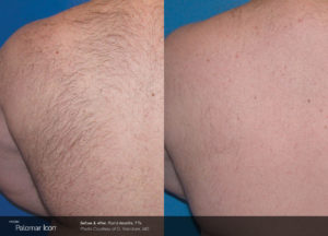 Hair-Removal-Before-_-After-Photo-3