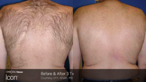 Hair-Removal-Before-_-After-Photo-5