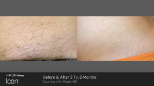 Hair-Removal-Before-_-After-Photo-7