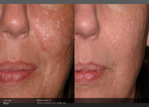 Scar-Removal-Before-and-After-Images-1