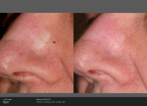 Scar-Removal-Before-and-After-Images-3