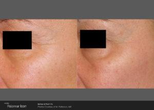 Skin-Renewal-Before-_-After-Photo-1