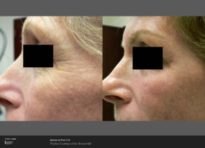 Skin-Renewal-Before-_-After-Photo-2