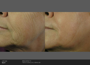 Skin-Resurfacing-Before-_-After-Photo-2