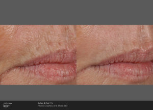 Skin-Resurfacing-Before-_-After-Photo-3