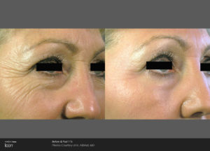 Skin-Resurfacing-Before-_-After-Photo-4
