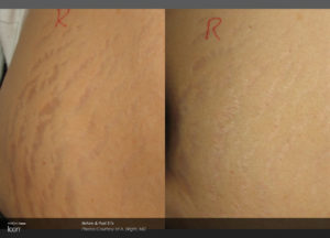 Stretch-Mark-Before-_-After-2_0