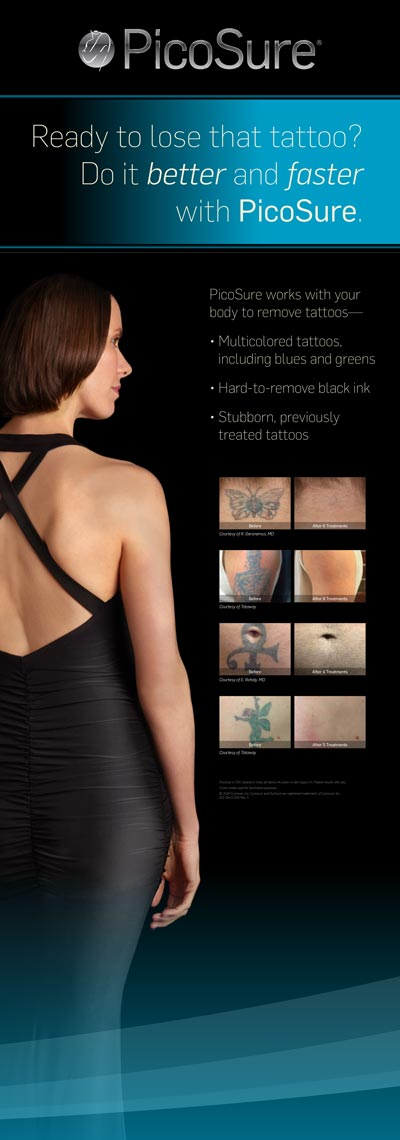 Tattoo-Removal-Bannerstand