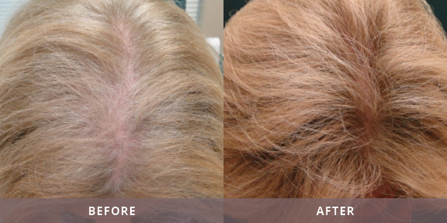 Santa Fe Hair Replacement Results10