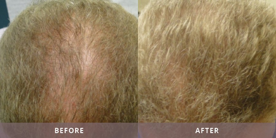 Santa Fe Hair Replacement Results11