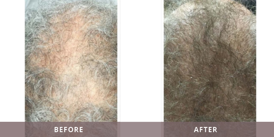 Santa Fe Hair Replacement Results2