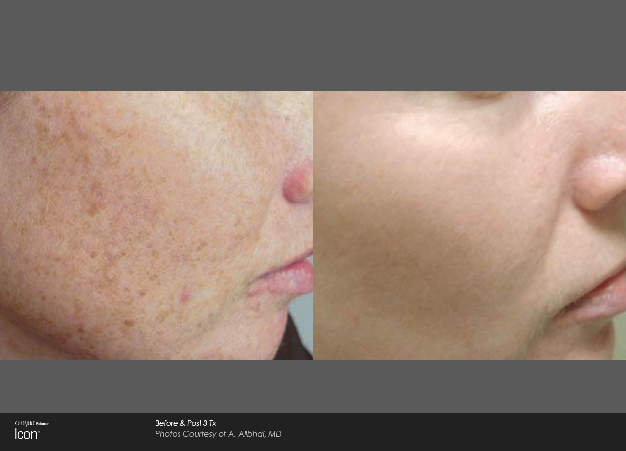 Skin-Revitalization-Before-&-After-Photo-1