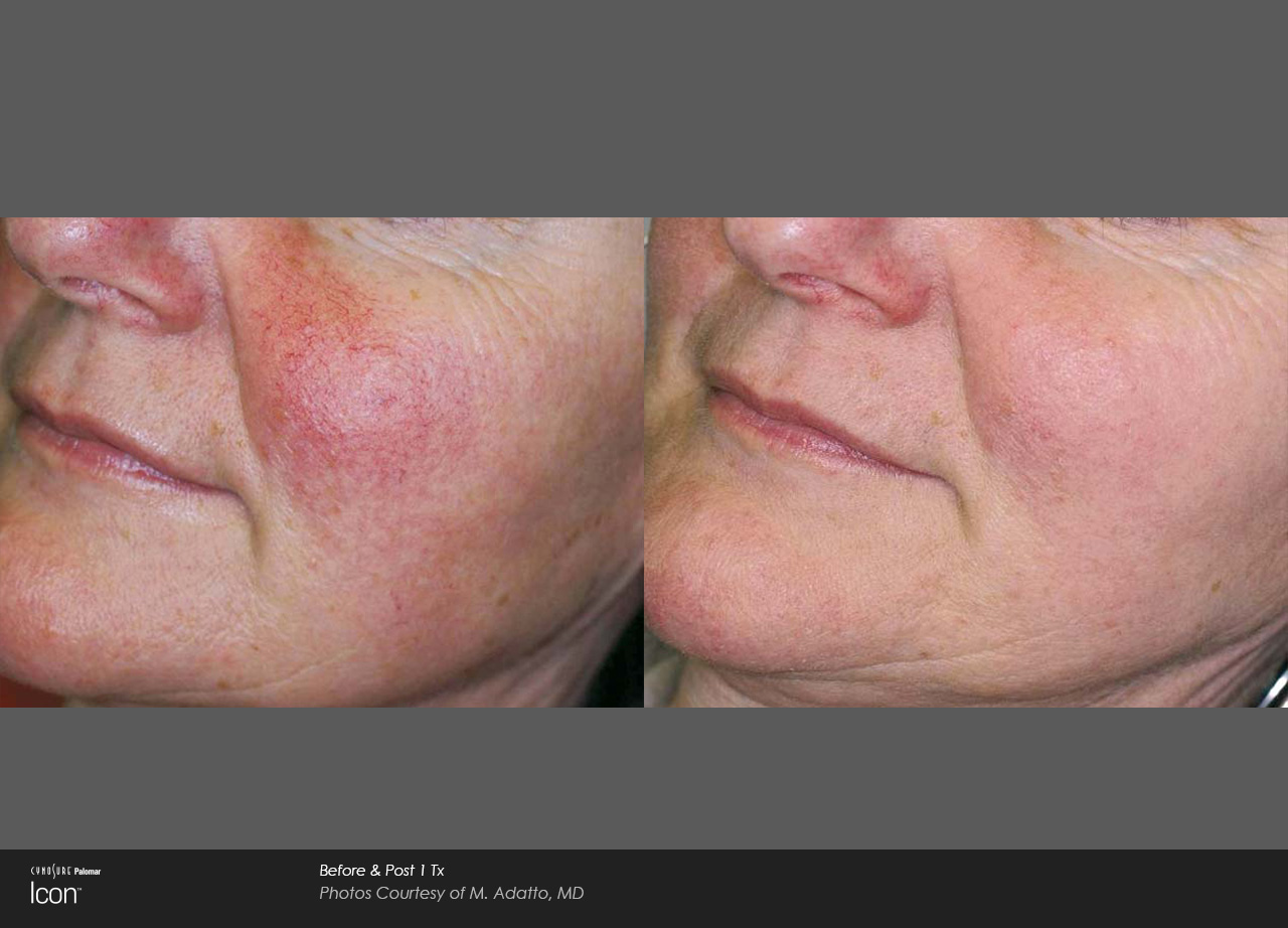 Skin-Revitalization-Before-&-After-Photo-5