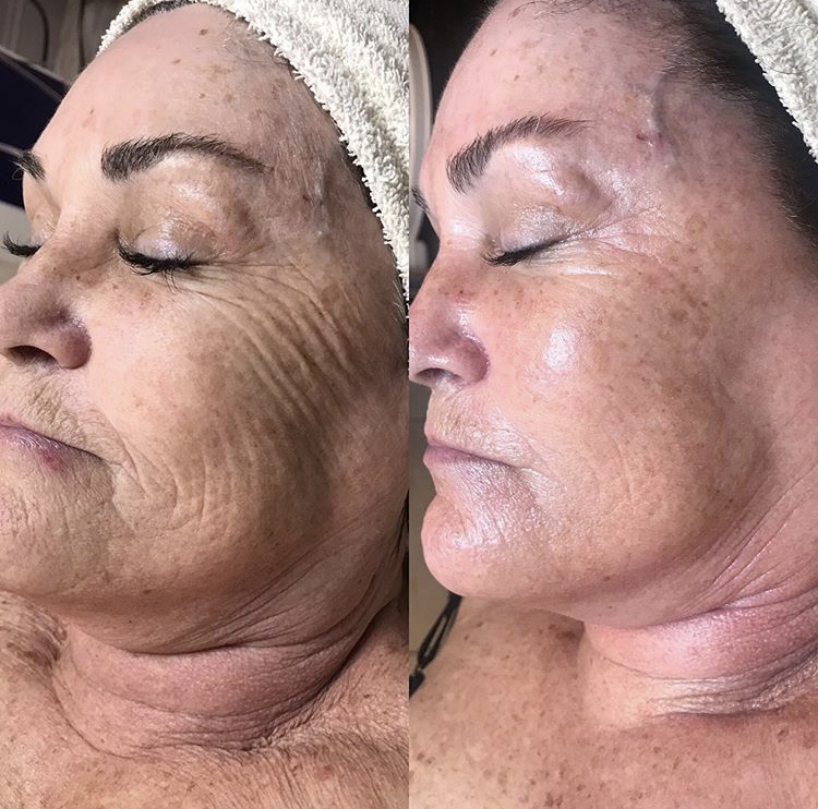 3 JetPeel txs with 4 steps after 3 weeks