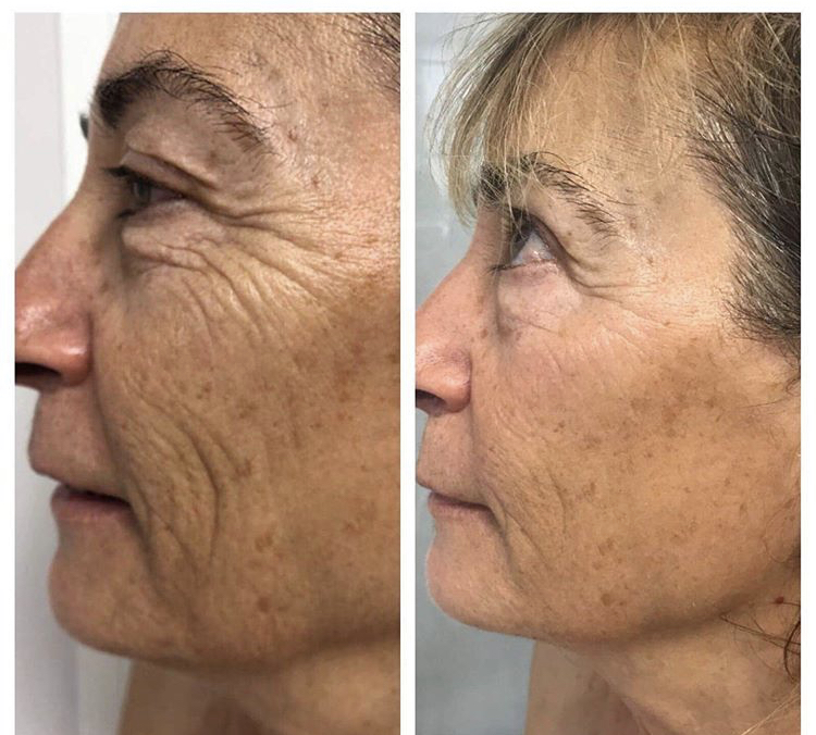 6 JetPeel txs with one tx per week using 4 steps